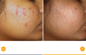 Acne scars treated by TIXEL heat technology. In Hull and LEEDS by Dr Paul CHarlson, the only TIXEL machine in Northern UK