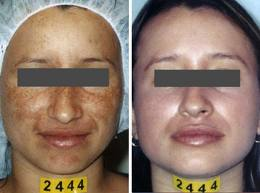 Pigmentation treatment Removal by Dermamelan Mask