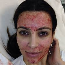 PRP uses your own platelets to stimulate collagen. Kim Kardasian West