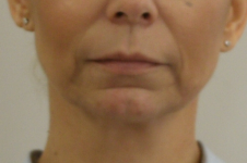 Dermal filler treatment Skinqure Brough