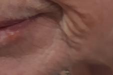 Tixel Skin Rejuvenation