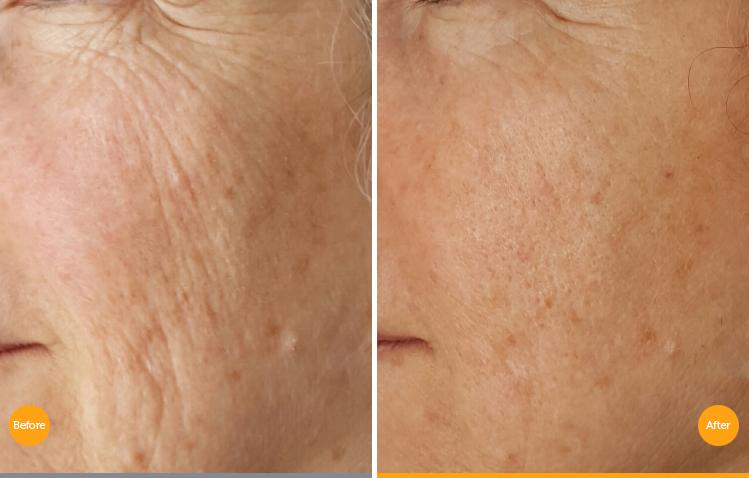 skin rejuvenation by TIXEL