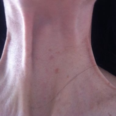 stringy aging neck