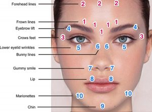 Typical sites for Botox